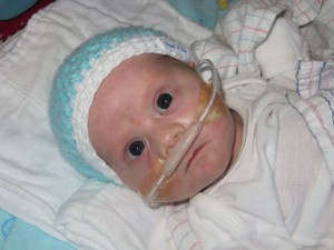 Age 1 month, he has been in the hospital for 20 days with RSV/pneumonia and will be released 3 days later